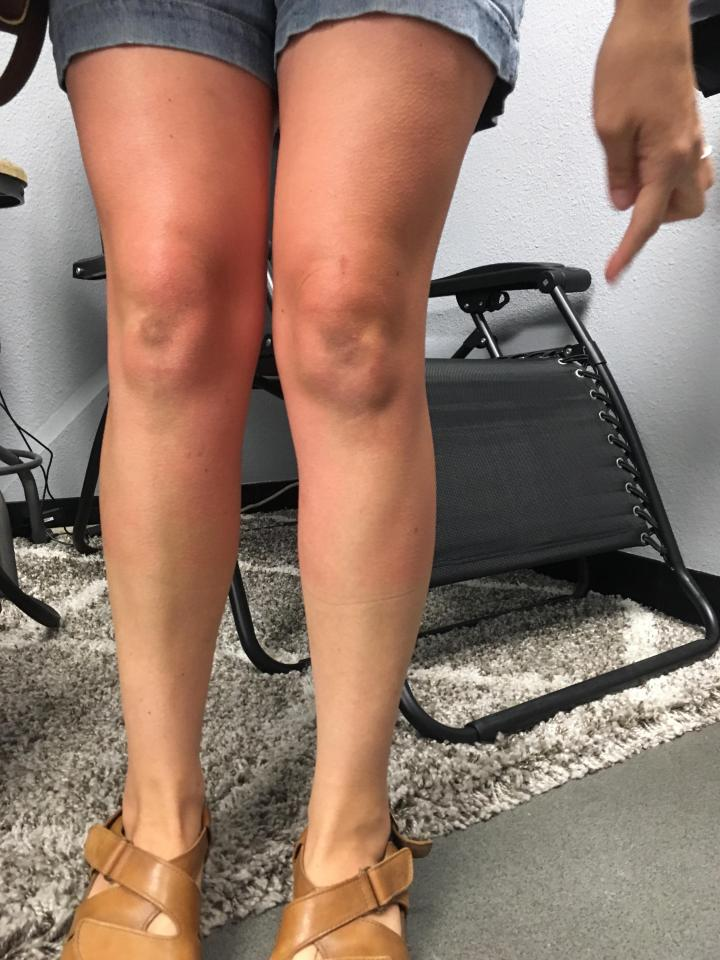 Cryotherapy-Third Time